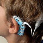 Los implantes cocleares permiten la integración de los niños con hipoacusia