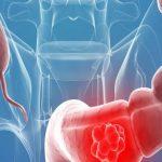 El 81% de los españoles entre 59 y 69 años tiene riesgo de morir por cáncer de colon