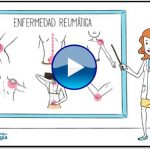 ¿Qué hace un reumatólogo y para qué sirve la reumatología?