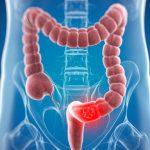 Cáncer colorrectal: el tratamiento y evolución dependen del lado del colon del tumor primario